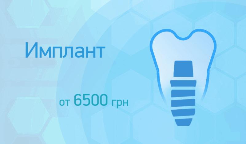 Акция - Имплант от 6500грн